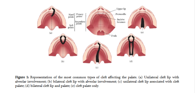 A diagram showing the common types of cleft lip and/or cleft palate.