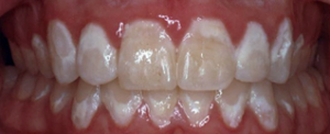 An example of white spot lesions following orthodontic treatment