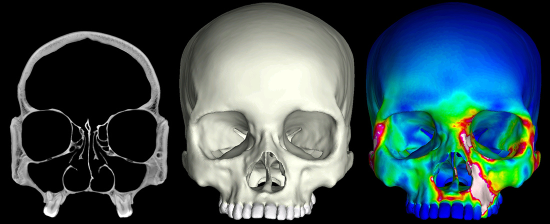 """X-ray CT """"slices"""" were used to construct 3D finite element models of human crania. These models were then subjected to a series of mechanical analyses that simulate feeding. The image to the far right depicts a finite element model during a bite on its left first premolar. """"Warm"""" colors indicate regions of high strain, while """"cool"""" colors indicate regions of low strain."""